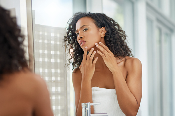Acne in my 30s? Really?